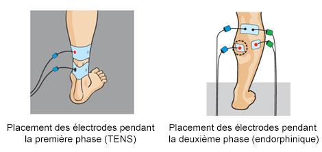 placement-electrodes-compex-tendinopathie-talon-achile